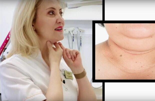 owal twarzy / YouTube: Estetyka i Chirurgia