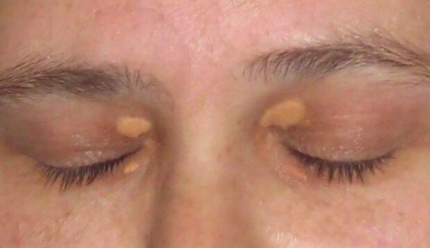 Symptom chorób serca/Youtube @Dermaworld Skin & Hair Clinics